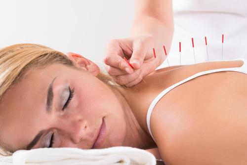 Laser Therapy - image ss-acupuncture-blond on https://www.drlisaowen.com